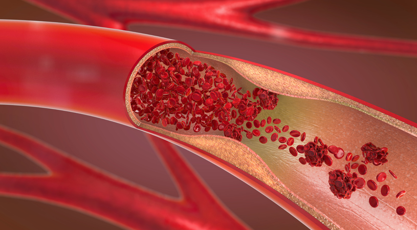 What Do Your Cholesterol Numbers Mean?